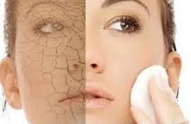 peau-sèche-resserrer-pores-dilatés