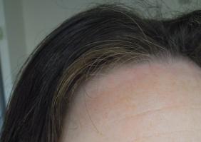 résultat cheveux blancs