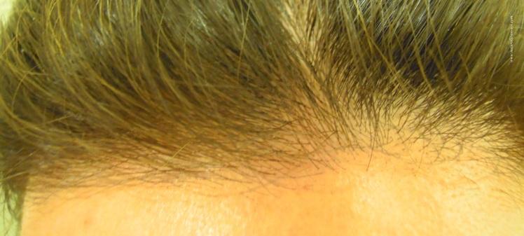 resultat-obtenu-sur-cheveux-blancs